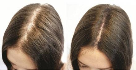 Bliss Hair - componente naturale de produs